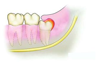 最里面大牙旁边肉肿了非常难受,这到底是怎么回事