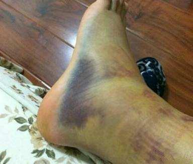 踝关节扭伤,什么该做什么不该做