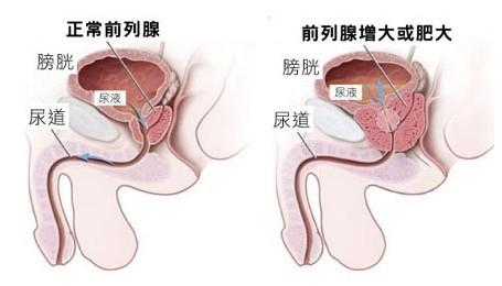 哈尔滨前列腺肥大医院提:生活中做到这3点,可以有效预防前列腺增生